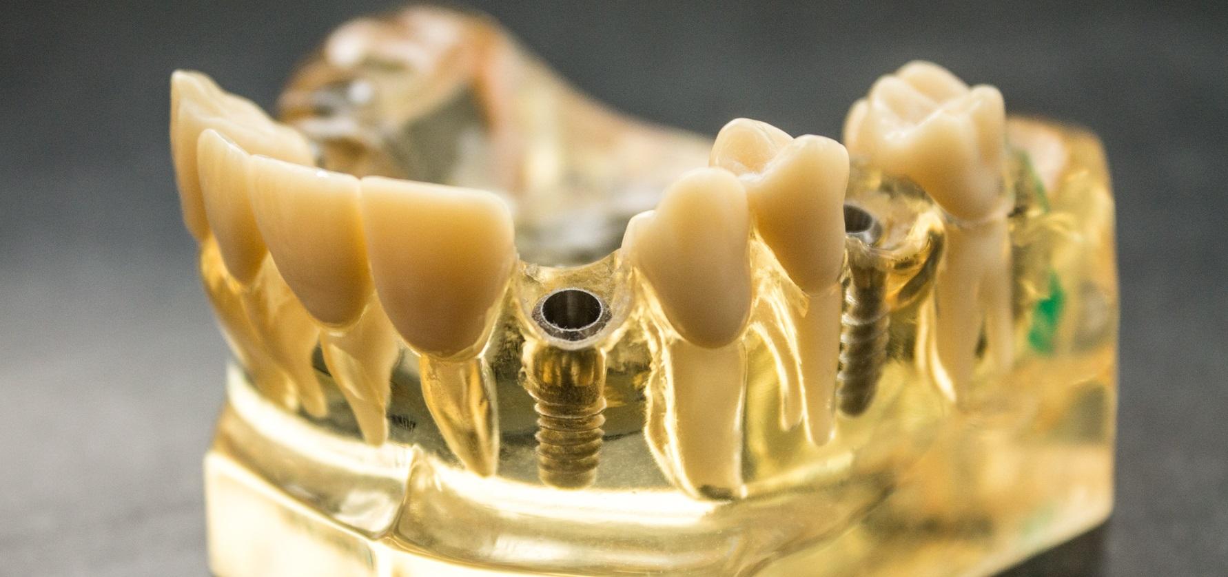 Plaatsing-protheses-in-gebit-door-tandheelkundigen-van-Zoetermeers-Tandtechnisch-Laboratorium-Zoetermeer-tandarts-Zoetermeer-praktijk