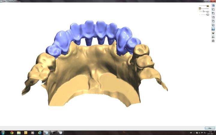 ZTLZoetermeer-gebitreconstructie-facings-en-bruggen-tandheelkune