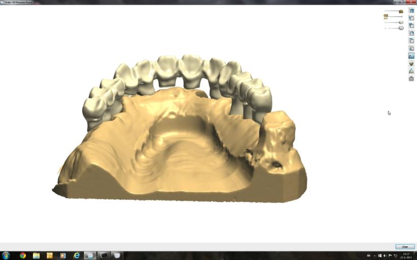 ZTLZoetermeer-gebitreconstructie-tandheelkune